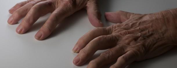 Arthritis: Medication & Natural Alternatives