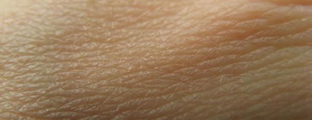 Acne, Eczema, Psoriasis & Treatments