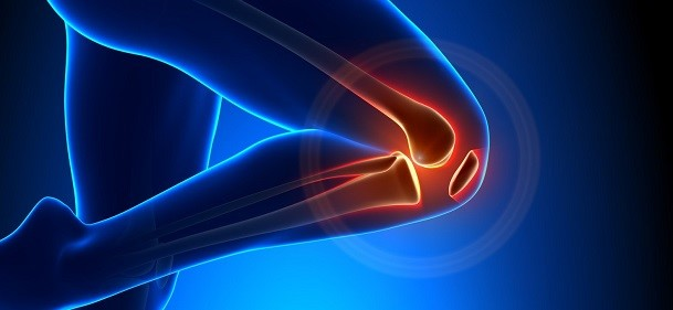 Prolozone knee pain