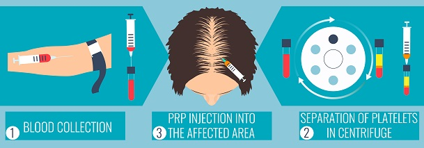 Platelet-Rich Plasma For Hair Loss