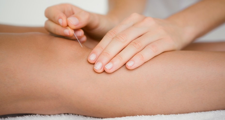 Acupuncture for pain knee pain in Halifax