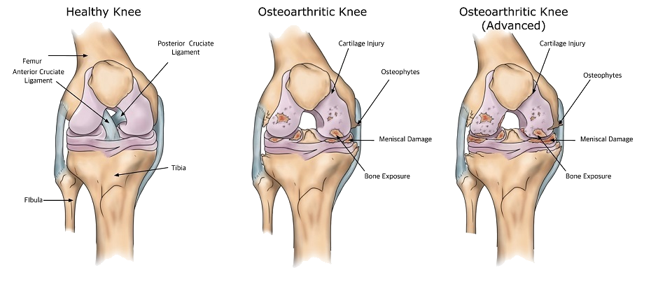 Knee osteoarthritis stages