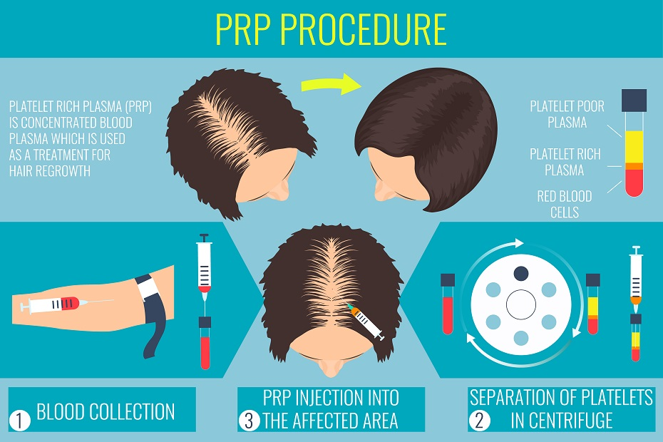 Platelet-Rich Plasma For Hair Loss | Dr  Colin MacLeod ND
