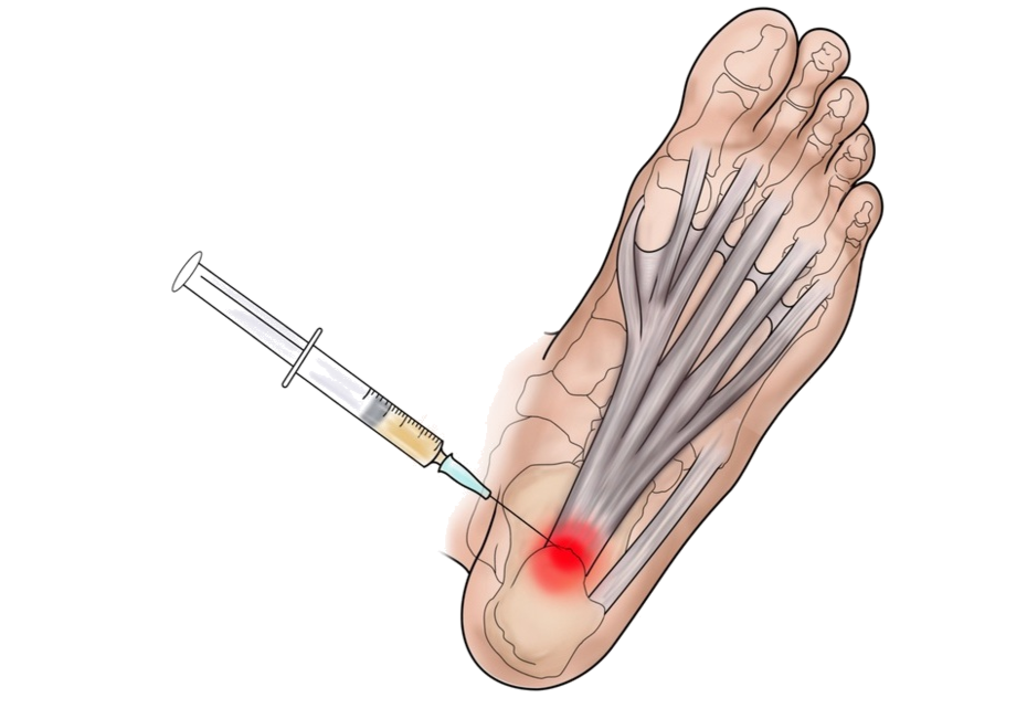 Platelet-rich plasma  injection for plantar fasciitis