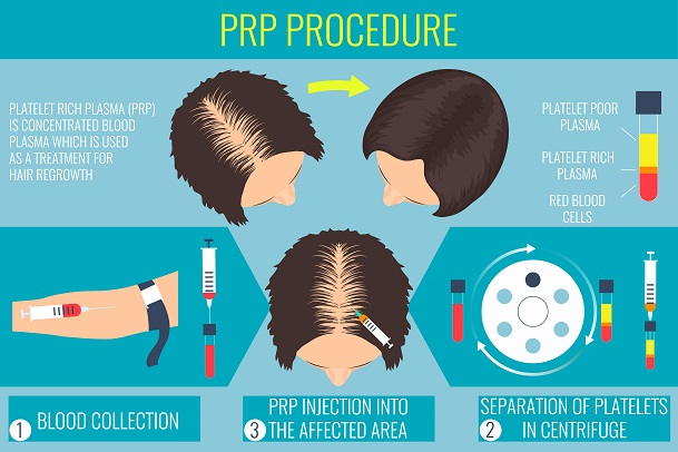 Platelet-rich plasma (PRP) injection treatment for treatment of hair loss