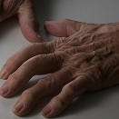 Arthritis: Medication & Natural Alternatives